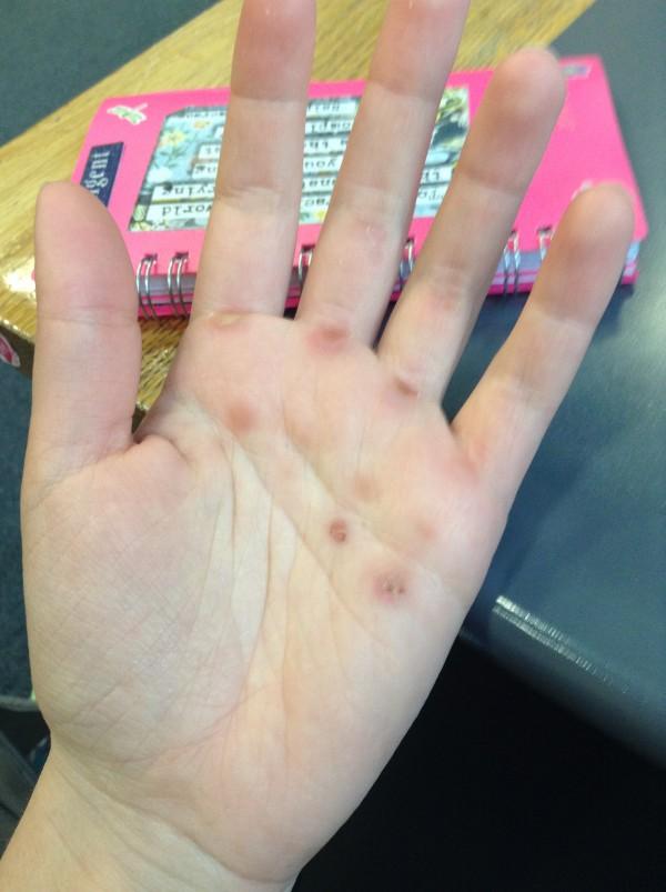hands, Limerick, Ireland, Smaby, Photo 1